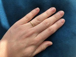 指輪に指毛は似合わない 計画的な脱毛で毛穴レスに、指も若返る!?